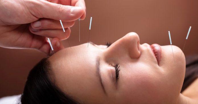 akapunktur