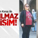 op_dr_volkan_kinas_ile_inanilmaz_degisim