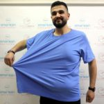 tup-mide-ameliyati-ile-biri-65-digeri-32-kilo-verdi